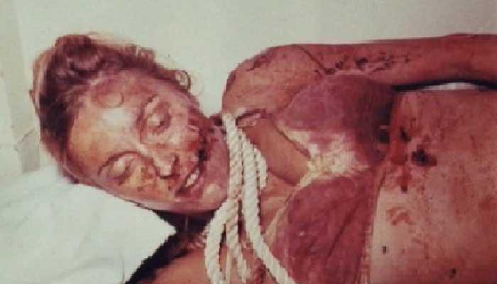 8.5 Aylık Hamileyken Acımasızca Katledilen Sharon Kate