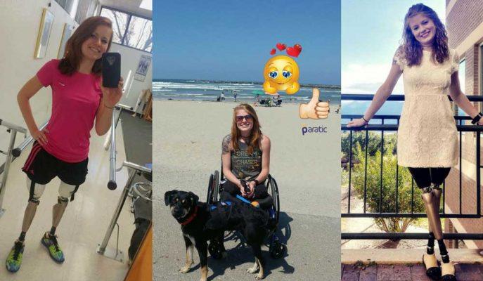 Tren Kazasında İki Bacağını da Kaybeden Genç Kadının Cesur Öyküsü!